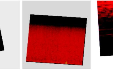 Makine öğrenmesi ile öksürük tespiti